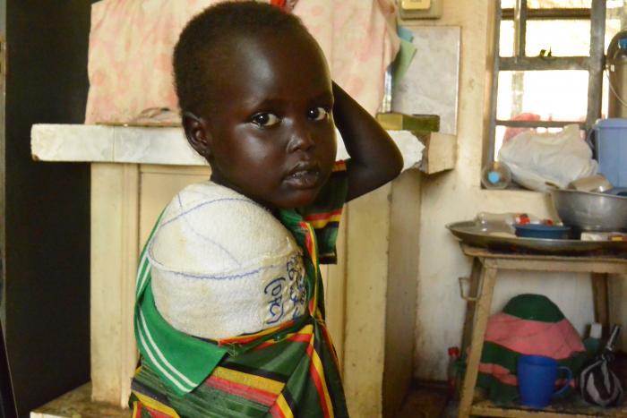 Fem år gamle Nya fra Sør-Sudan med bandasje etter amputasjonen av høyrearmen hennes.