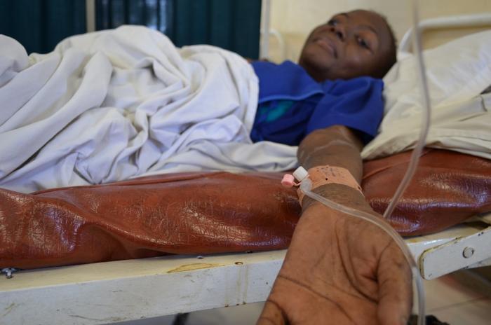 En kvinne i sykeseng med veneflon.