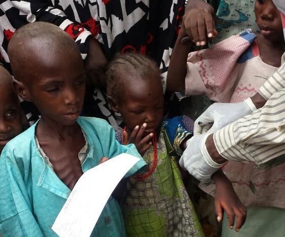 En hjelpearbeider fra Leger Uten Grenser undersøker barn for underernæring.