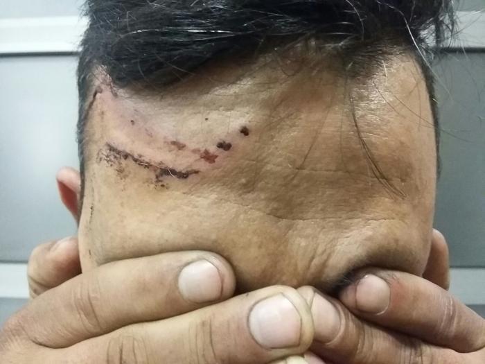– Vi sov ikke langt fra grensen og våknet opp med pepperspray i øynene, sier en mann Leger Uten Grenser behandlet. Foto: Leger Uten Grenser