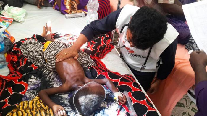 UNDERERNÆRING: Lege Kalyan Krishna Velivela undersøker et underernært barn på regionssykehuset Mudugs ernæringssenter. Leger Uten Grenser har startet prosjekter her og ved sykehusets barneavdeling - fire år etter at vi så oss nødt til å trekke oss ut fra Somalia. Foto: Abdikarim